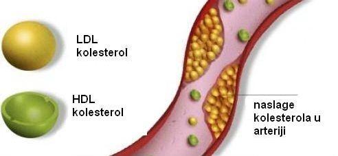 Kolesterol,HDL,LDL
